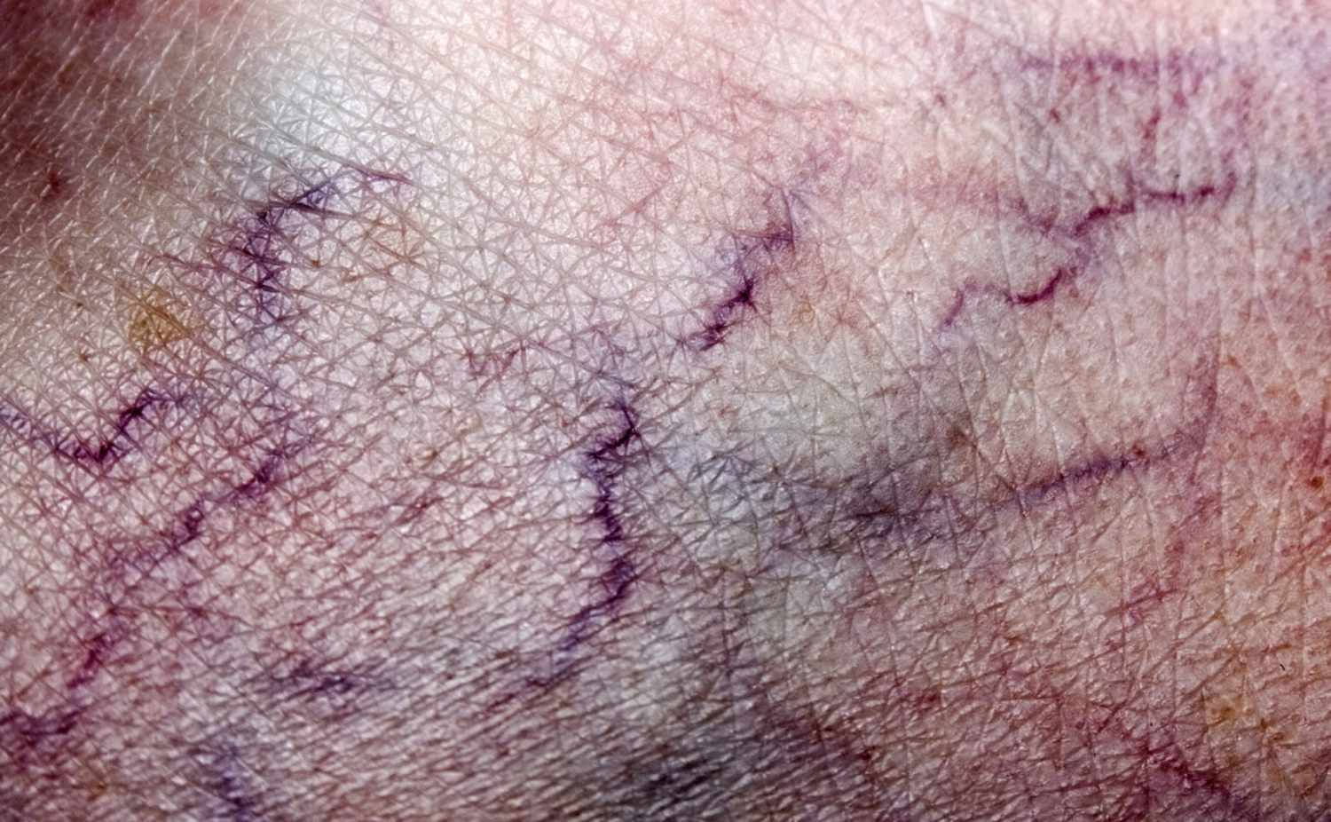 What Is a Vein? Definition, Types and Illustration