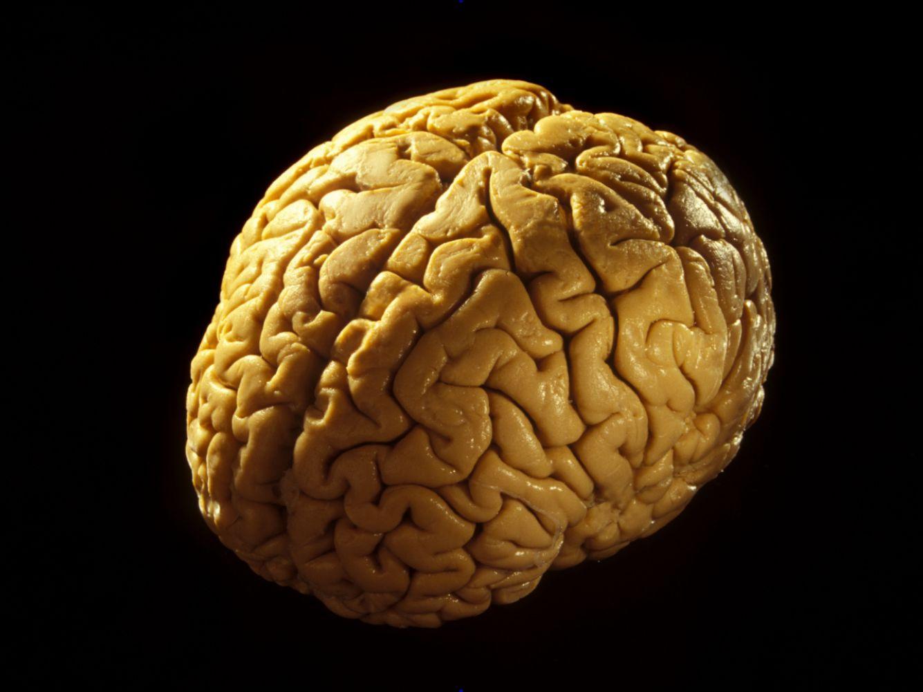Human Brain Quiz - How Well Do You Know Brain Anatomy?