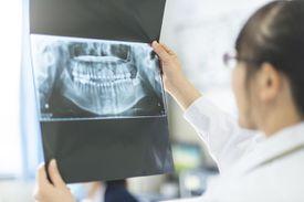 Investigating a dental x-ray