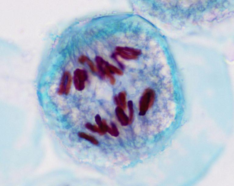 Meiosis Anaphase I