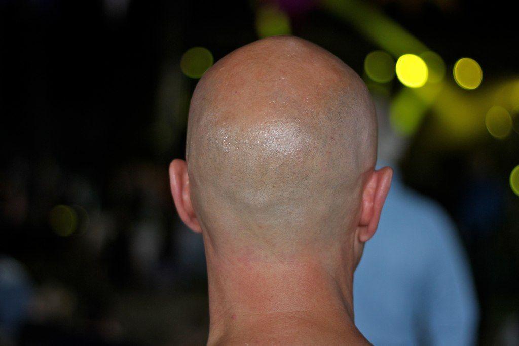 Back of bald head.