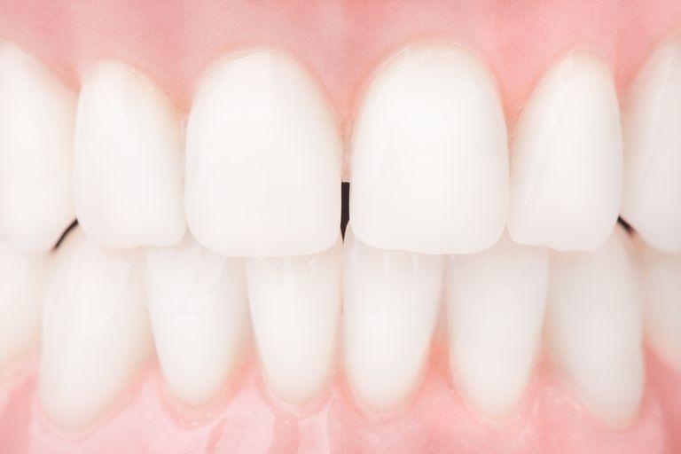 Human Teeth and Evolution