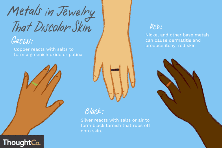 Metals in Jewelry That Discolor Skin. Green: Copper reacts with salts to form a greenish oxide or patina. Black: Silver reacts with salts or air to form black tarnish that rubs off onto skin. Red: Nickel and other base metals can cause dermatitis and produce itchy, red skin.