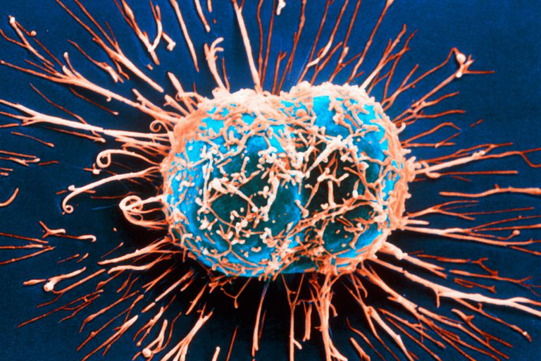 cervical cancer cells
