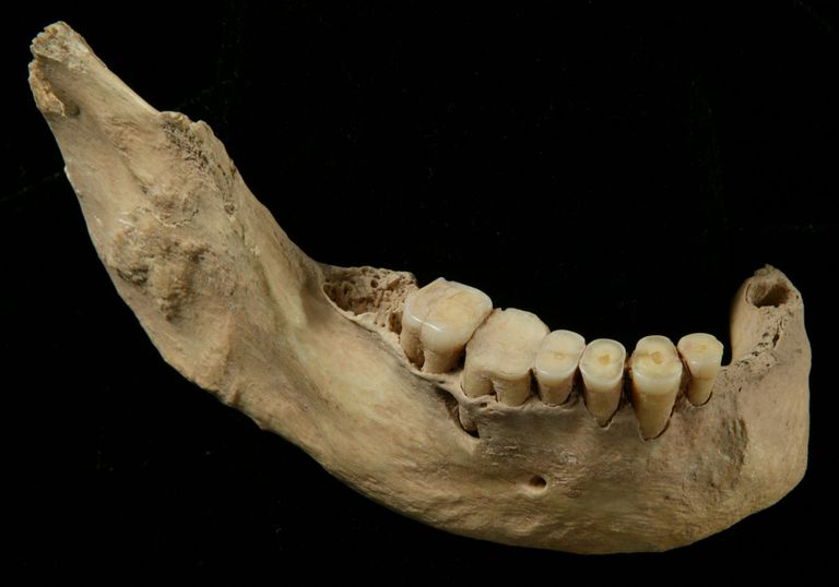 Lower jaw from early modern human skeleton from Tianyuan Cave, China.