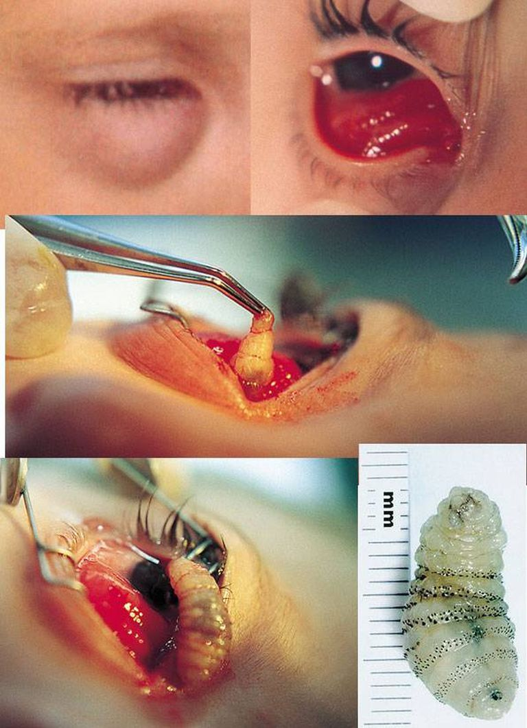 Watch doctors remove a live worm from a patient's eye.
