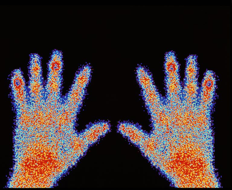 Radioactive tracers are used in nuclear medicine, as in this bone scan used to detect cancer.