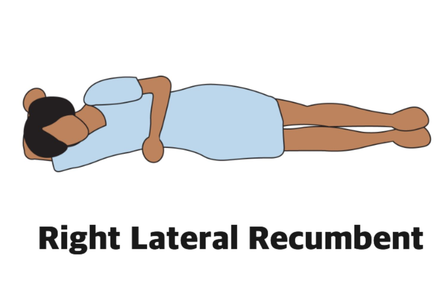 Right Lateral Recumbent