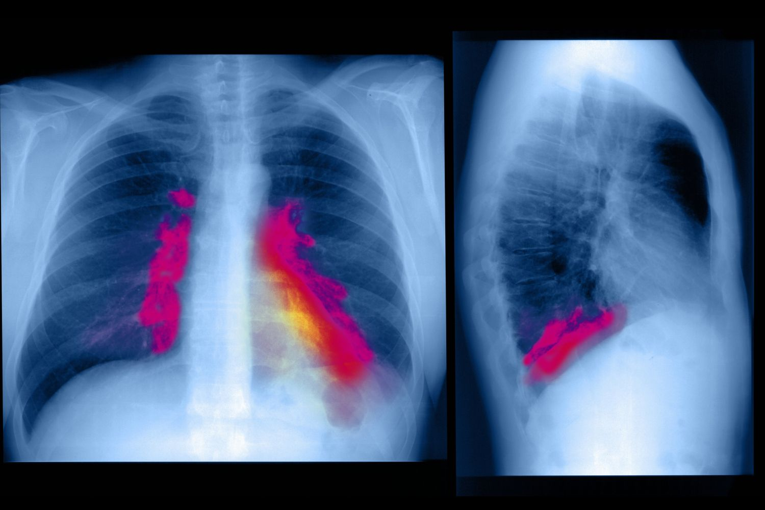 Respiratory Infection of the Lung