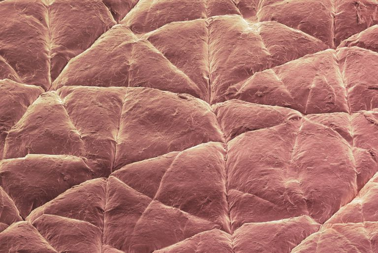 Epidermis (skin surface). This is a colored scanning electron micrograph (SEM) of the surface of the skin of a 6-year-old. The outermost surface of the epidermis is composed of dead and dying skin cells from the underlying epidermis, which help to protect the delicate epidermal cells from the external environment.
