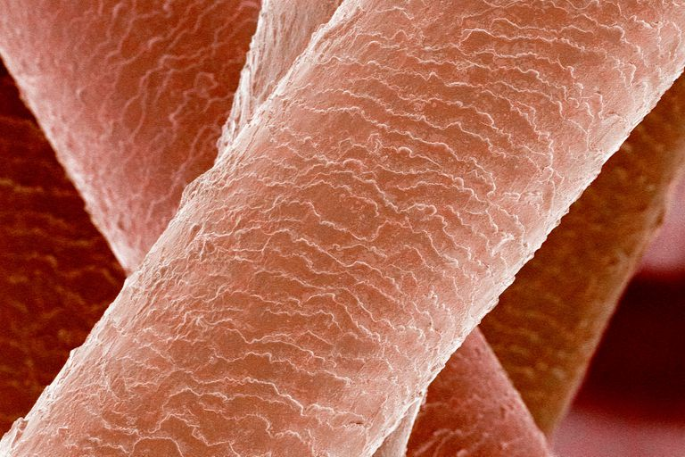 This is a SEM micrograph of human hair, which is made of keratin.