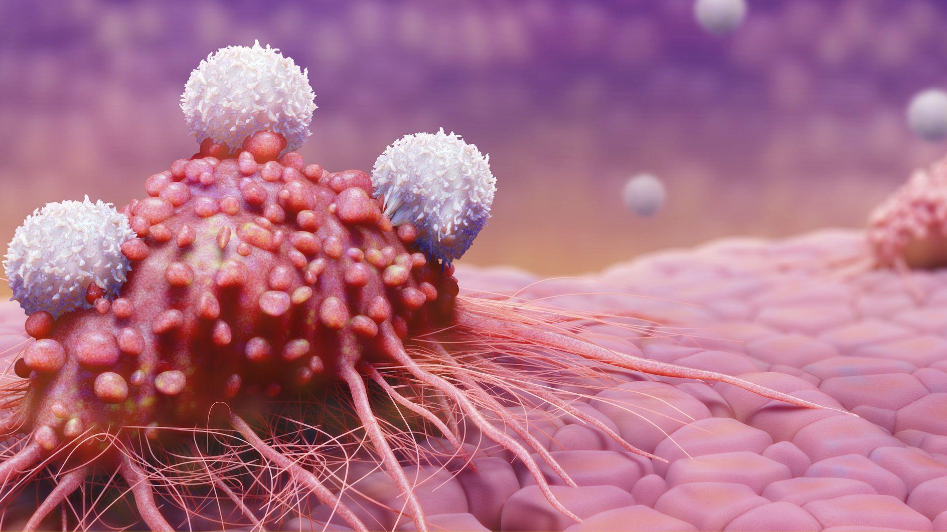 Tratamiento del cáncer de próstata de Filadelfia