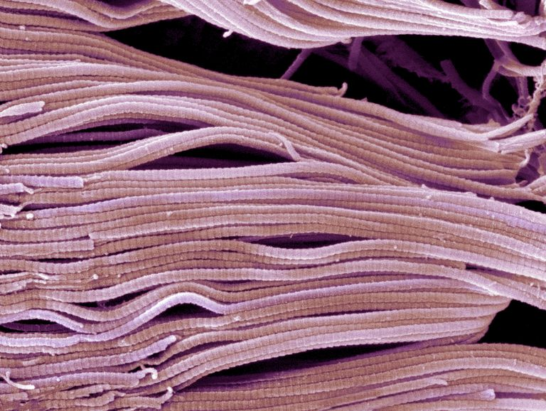 This scanning electron micrograph (SEM) clearly shows the banded pattern that is characteristic of collagen.