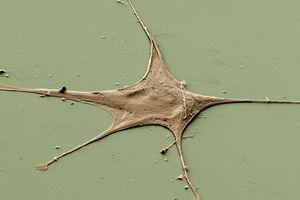 Fibroblast Cell