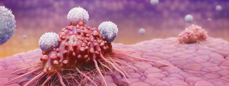 cáncer de próstata en estadio terminal enfermos