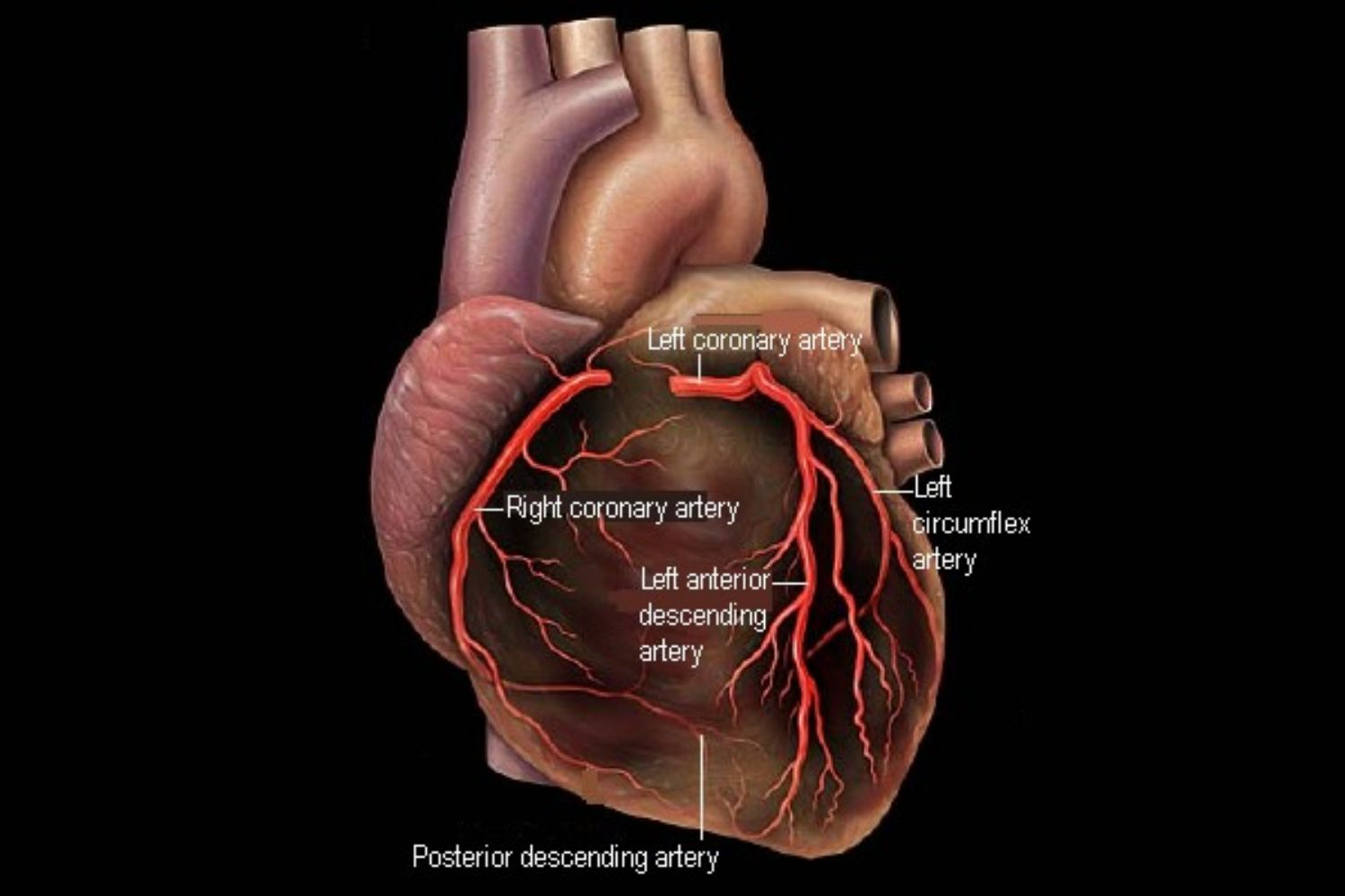 Coronary Arteries: Anatomy and Disease