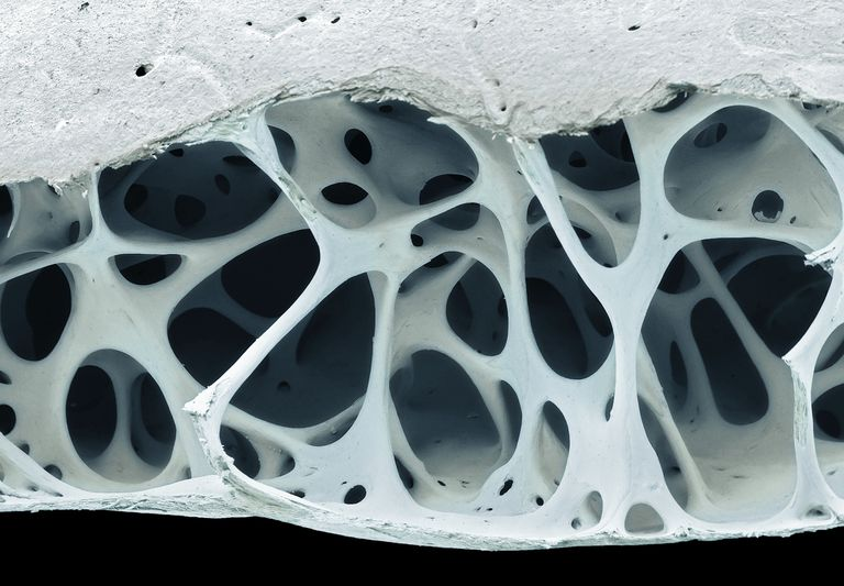 Bird bone tissue cross section