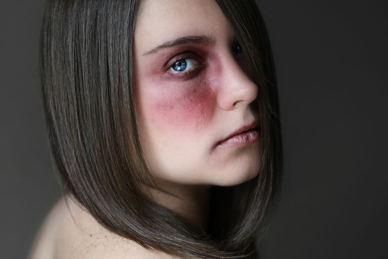 Portrait of young woman with bruise around eye