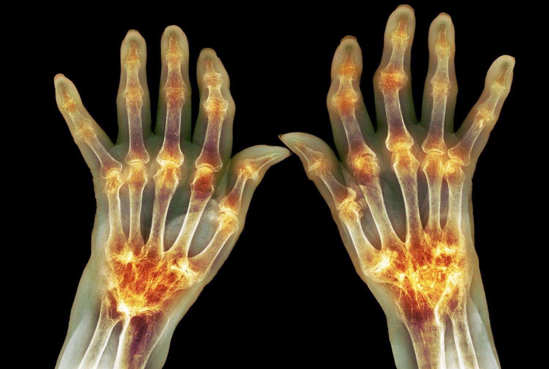 boala atunci când articulațiile devin rigidizate